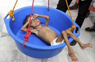 A Yemeni child suffering from malnutrition is weighed at a hospital in the northern district of Abs, in Yemen's Hajjah province on August 18, 2018.  / AFP PHOTO / ESSA AHMED