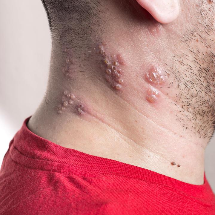 帯状疱疹 顔 症状
