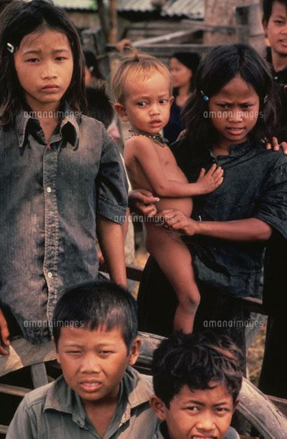 栄養失調の子供 カンボジア[02265026686]| 写真素材・ストック