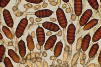 カビの胞子 顕微鏡写真