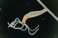 刺胞動物の顕微鏡写真
