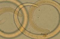 旋毛虫の顕微鏡写真