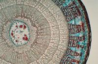 双子葉植物の茎の横断面の顕微鏡写真