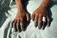 アンディー・ヘンダーソンの凍傷の指