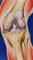 膝の骨関節炎