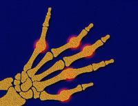 関節炎の手