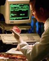 バクテリアの培養の検査