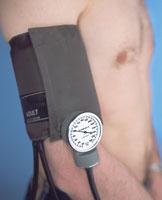 血圧の測定
