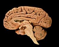 脳 01809011478| 写真素材・ストックフォト・画像・イラスト素材|アマナイメージズ