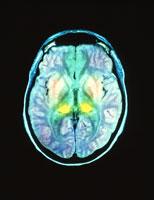 クロイツフェルト‐ヤコブ病のMRI