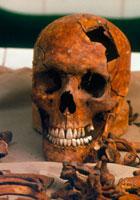 法科学研究所の頭骨と骨 01809016856| 写真素材・ストックフォト・画像・イラスト素材|アマナイメージズ