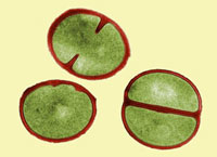 Staphylococcus aureus dividing, TEM