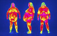 Obese woman, thermogram 01809020824| 写真素材・ストックフォト・画像・イラスト素材|アマナイメージズ