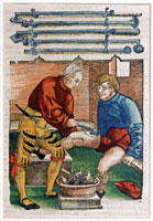 Wound cauterisation,16th century
