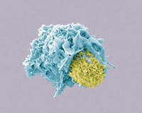 Dendritic cell and lymphocyte�CSEM