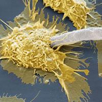 Macrophage attacking parasite,SEM