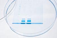 Protein analysis