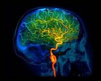 Brain blood vessels,3D angiogram