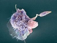 Macrophage attacking a foreign body,SEM 01809026204| 写真素材・ストックフォト・画像・イラスト素材|アマナイメージズ