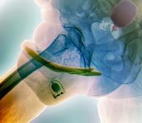 Penis prosthesis with pump, X-ray 01809026600| 写真素材・ストックフォト・画像・イラスト素材|アマナイメージズ