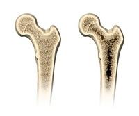 Osteoporosis, artwork