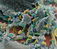 Faecal bacteria, SEM 01809027959  写真素材・ストックフォト・画像・イラスト素材 アマナイメージズ