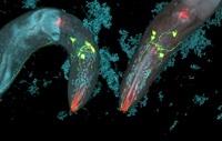Caenorhabditis elegans and bacteria 01809028817| 写真素材・ストックフォト・画像・イラスト素材|アマナイメージズ
