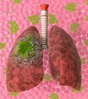 Lung cancer, artwork