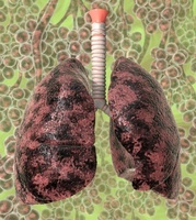 Smoker's lungs, artwork