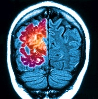 Alzheimer's brain, composite image