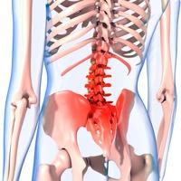 Lower back pain, artwork