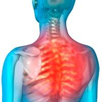 Back pain, artwork 01809029770| 写真素材・ストックフォト・画像・イラスト素材|アマナイメージズ
