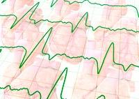Irregular heart beat, conceptual image