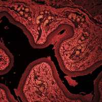 Squamous epithelium