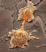 Mouth cancer cell dividing, SEM