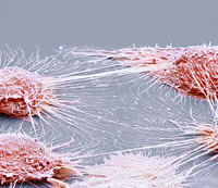 Mouth cancer cells, SEM