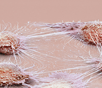 Mouth cancer cells, SEM