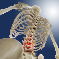 Lower back pain, conceptual artwork