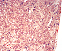 Ovarian fibrosarcoma, light micrograph