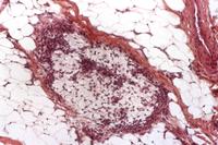 Salivary gland cancer, light micrograph