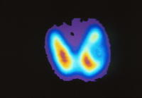 Coloured Gamma scan of thyroid cancer