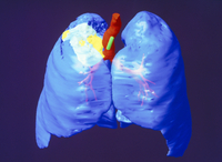 Coloured computed tomography scan of lung cancer