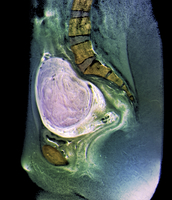 Uterine fibroid, X-ray