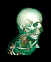 Tracheostomy, CT scan