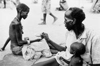 やせ細った難民 1991年 スーダン