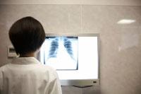 胸部レントゲン写真を見る女性医師