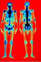 MRI Bone Scan