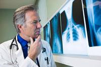 Doctor Examing X rays 20025251518| 写真素材・ストックフォト・画像・イラスト素材|アマナイメージズ