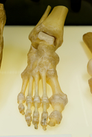 Plastinated Articulation of Human Ankle and Foot