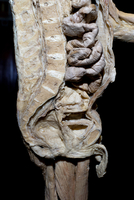 Plastinated Human Male Sagital Section of Spinal Column, Abdominal Cavity and Pelvis